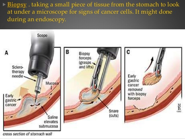 cancer gastric biopsial