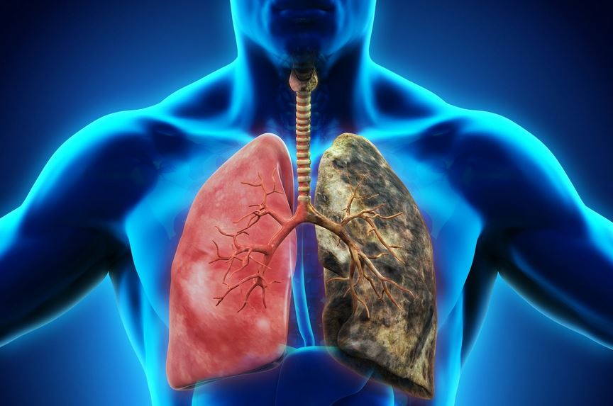 Respiratory Diseases: The Leading Cause of Death That Most P...